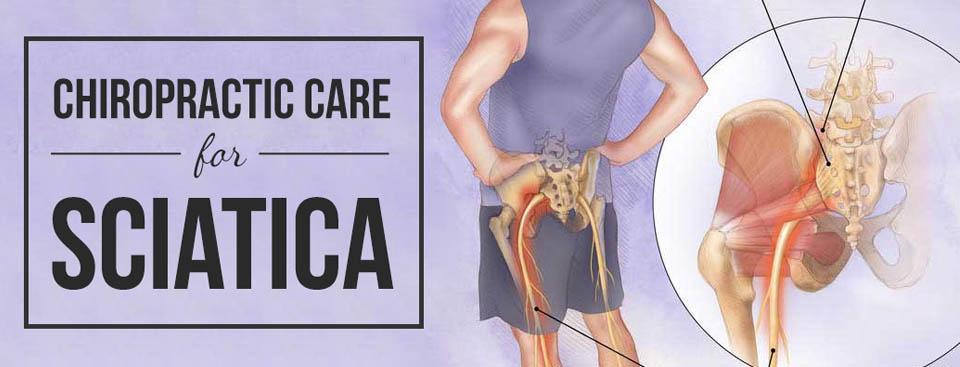 How to treat Sciatica or Sciatic Nerve Pain